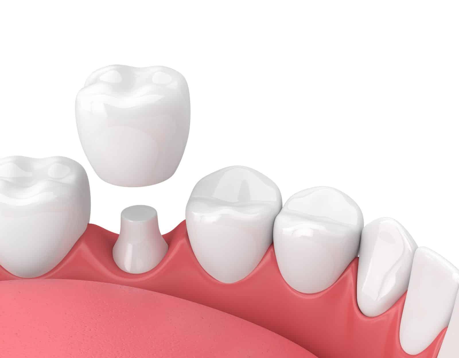 Centre médical dentaire : Un centre médical fiable ?